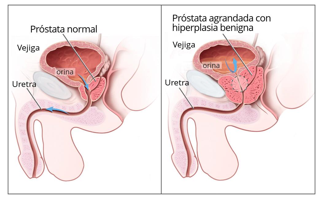 ¿Qué causa una próstata agrandada? ¿Cuáles son los síntomas?