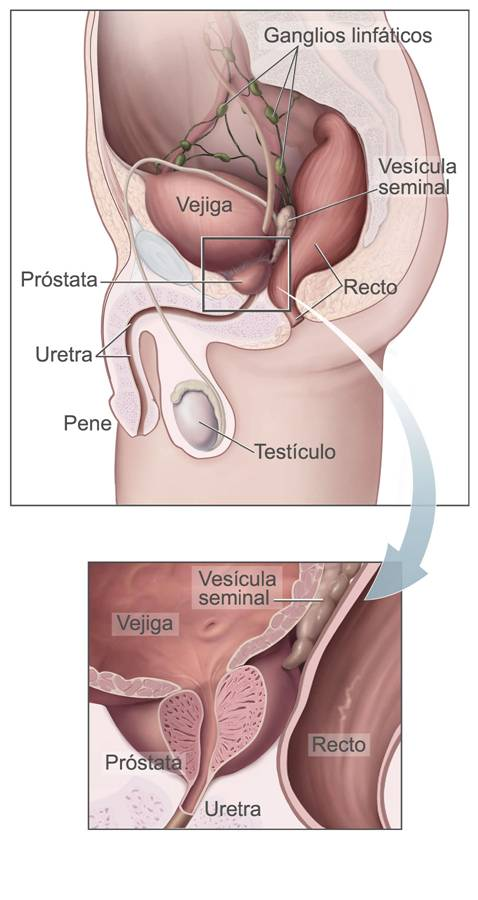Cirujano especializado en prostata